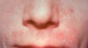 Seborrhoeic_dermatitis