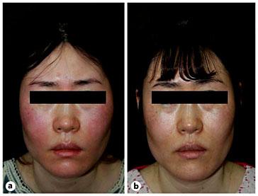 rosacea voor en na : botox