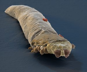 Colorized scanning electron micrograph of Demodex (Demodex folliculorum), tiny parasitic mites that live in the hair follicles of mammals. Their length ranges from .09-.5mm. Magnification: x1500 at 12x12 cm.