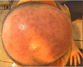 hoofdhuid-rosacea